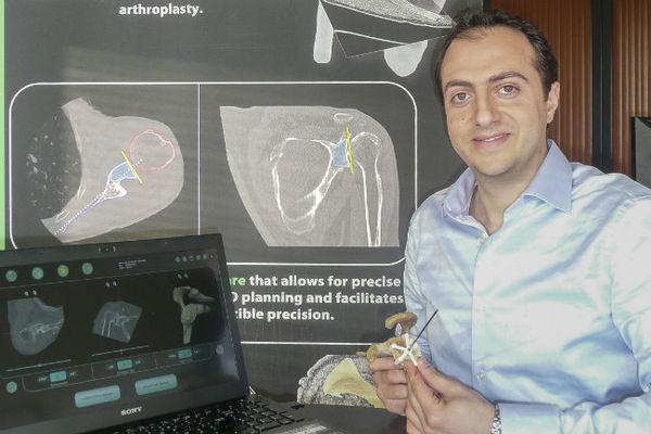 """Avec une imprimante 3D et les logiciels de la société Imascap, les chirurgiens bénéficieront de ce """"guide en plastique """" pour poser une prothèse de l'épaule à l'emplacement idéal et ne pas devoir recommencer l'opération quelques mois plus tard."""